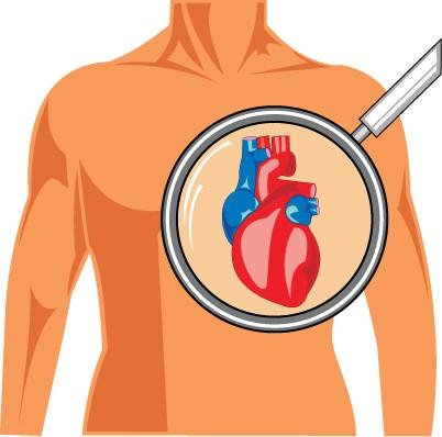 Nowotwory mogą atakować wszystkie struktury serca